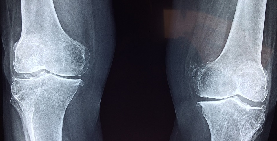 Programma knie artrose in samenwerking met het SKB